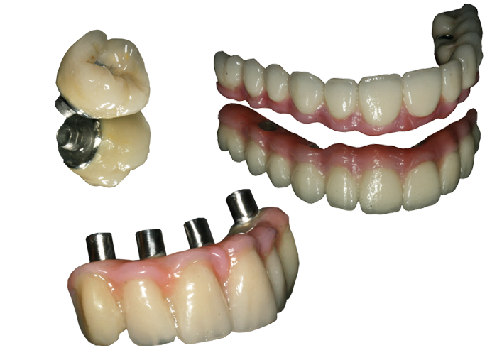implantology examples